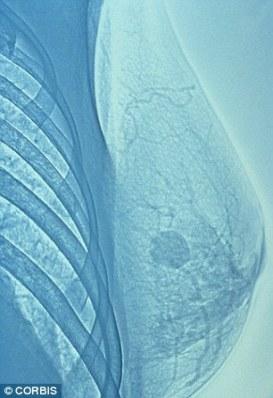 Эссекс, Сомерсэт дэх АЦС-уудын ойр хавьд хөхний хорт хавдрын өвчлөл үндэсний дунджаас өндөр байна. Хөхний хорт хавдрын зураг.